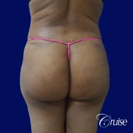 Liposuction Flanks - After Image 4