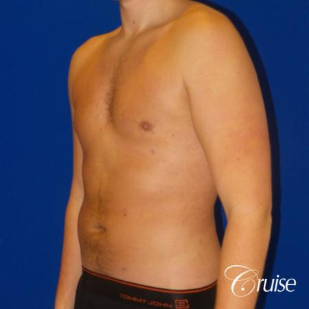 Best  before and after lipo photos of guys -  After Image 2