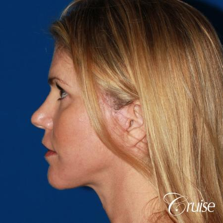 best small anatomic implant photos -  After Image 2