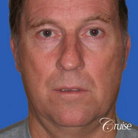 52 yr old male with medium square chin implant - Before Image 1