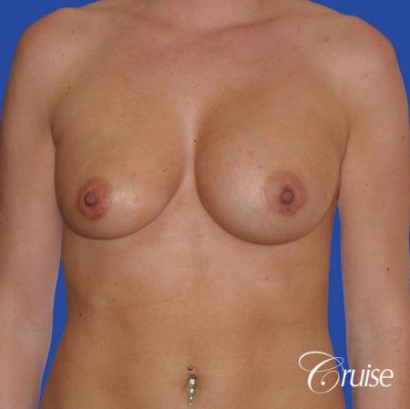 breast revision with silicone implant rupture - Before Image 1