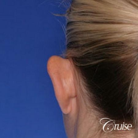 best otoplasty ear surgery by plastic surgeon in Newport Beach - Before Image 2