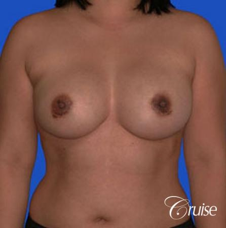 left breast capsular contracture before and after photos -  After Image 1