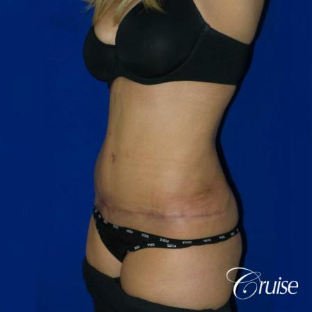 Tummy Tuck Standard Incision - After Image 3