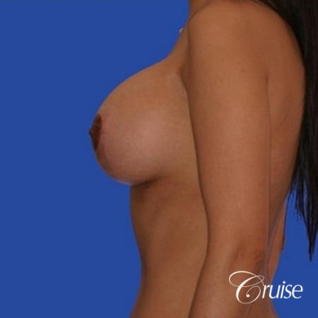 breast lift lollipop before and after -  After 2