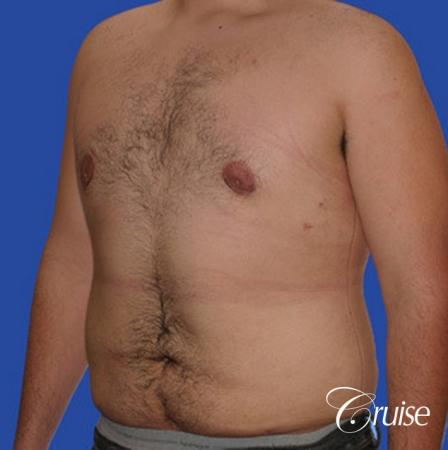 male liposuction abdomen flanks with Gynecomastia -  After Image 3