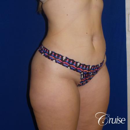 Liposuction Flanks & Abdomen - After Image 5