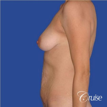 best mommy makeover incisions with saline implants - Before Image 2