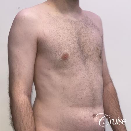 Gynecomastia: Patient 128 - After 5