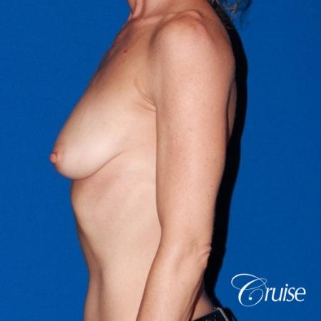 best breast lift results with high profile 375cc implants - Before and After Image 2