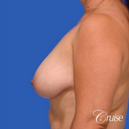 best breast lift donut results with saline augmentation - Before Image 2