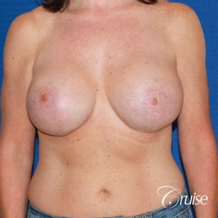best breast lift anchor with high profile saline implants -  After Image 1