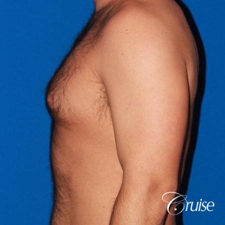 moderate gynecomastia on adult - Before Image 2