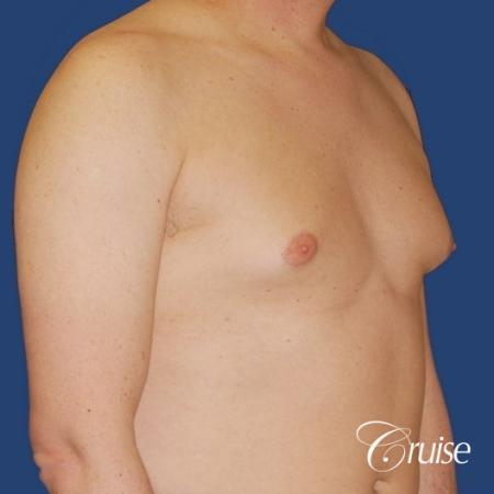 moderate gynecomastia on adult donut lift - Before Image 4