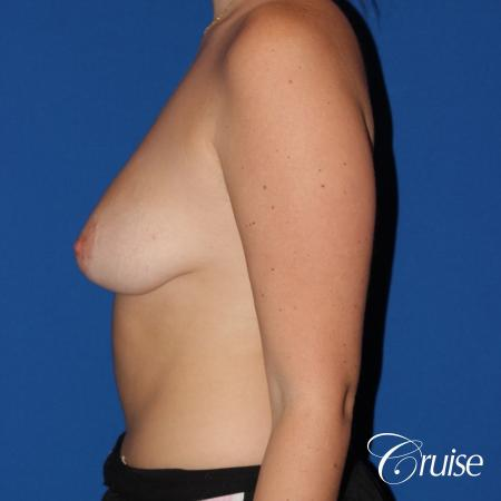 silicone implants with breast lift anchor newport beach - Before Image 2