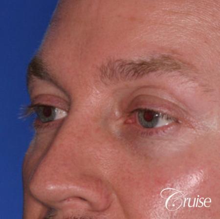 male soft tissue filler Juvaderm - Before Image 2