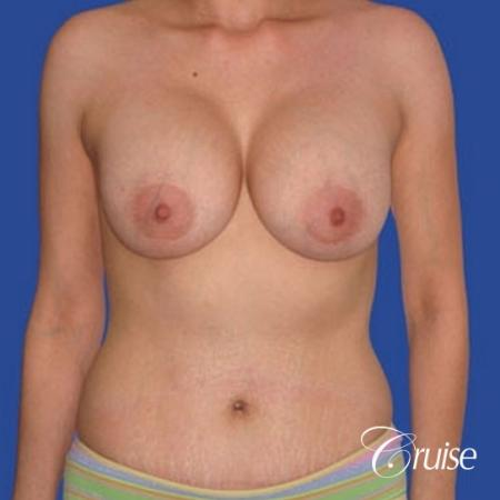 best mommy makeover incisions with saline implants -  After Image 1
