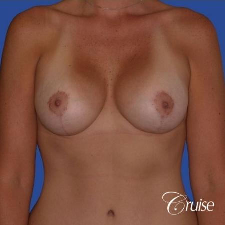 breast lift anchor on young woman -  After Image 1