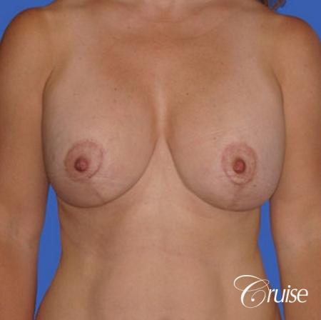 best saline breast reduction -  After Image 1