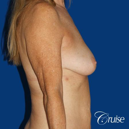 62 yr old woman with breast lift anchor and silicone implants - Before Image 2