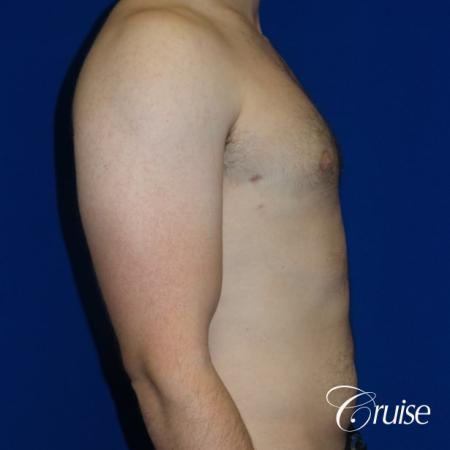 Adult gynecomastia pictures -  After Image 3