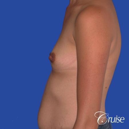 Breast Augmentation: Patient 42 - Before and After Image 2
