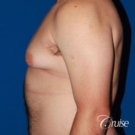Free Nipple Graft male gynecomastia - Before Image 2