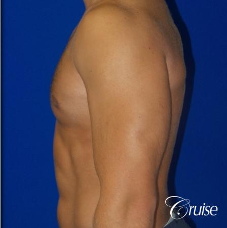 Mild Gynecomastia -Areola Incision - After Image 3