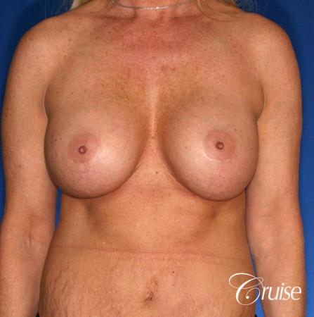best correction of bottomed out implants revision surgery - After Image