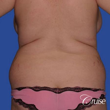 best before and after of liposuction abdomen, flanks, and upper back - Before Image 1