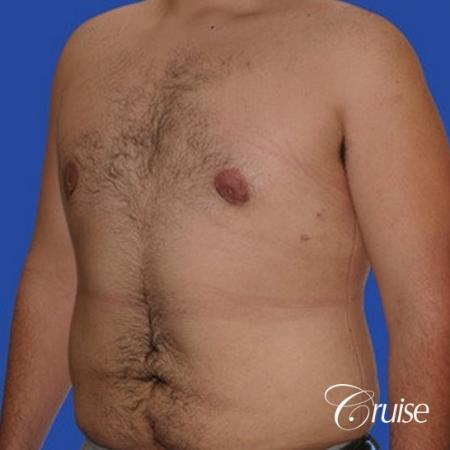 moderate gynecomastia with pointy nipples male -  After Image 2