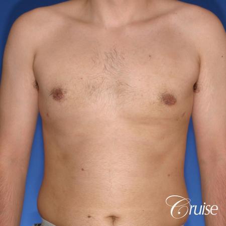 moderate gynecomastia puffy nipple -  After Image 1