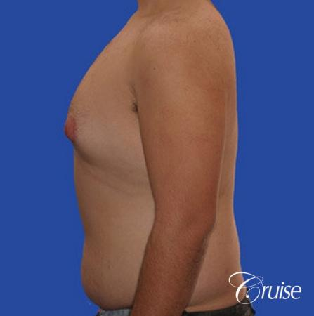 male liposuction abdomen flanks with Gynecomastia - Before Image 4