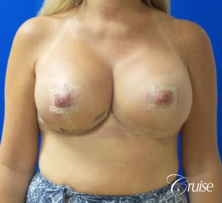 Breast Lift And Augmentation: Patient 6 - After Image 1