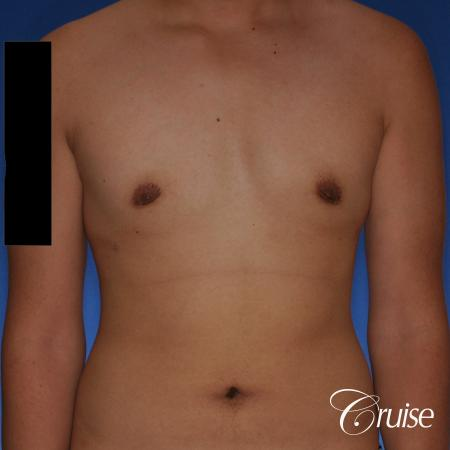 best gynecomastia surgery with plastic surgeon, Dr. Cruise -  After Image 1