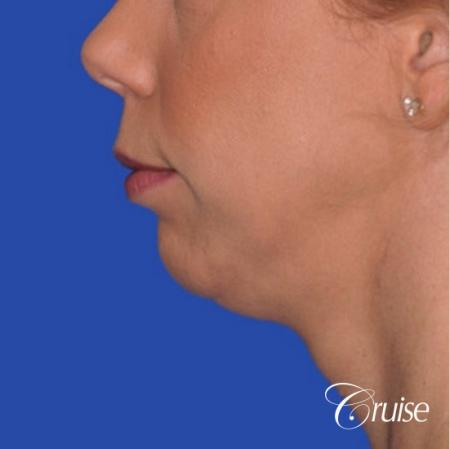 best medium anatomic chin implant on female - Before Image 2