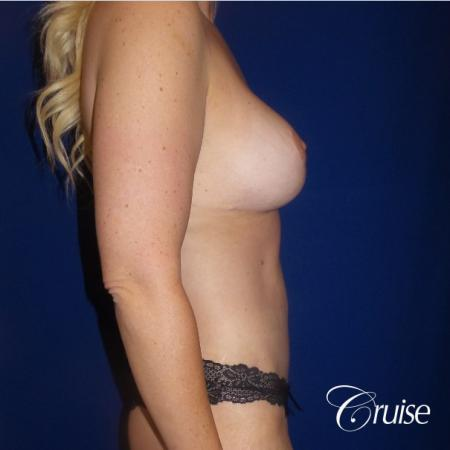 Circumferential Tummy Tuck, Breast Lift Anchor W/ Silicone - After Image 3