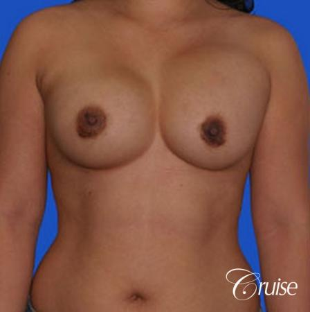 left breast capsular contracture before and after photos - Before Image 1
