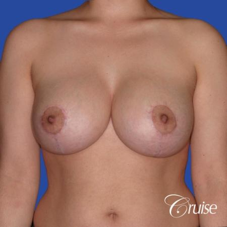 young woman who had best results for breast lift with saline implants -  After Image 1