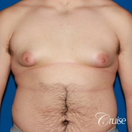 20 with Gynecomastia and puffy nipple - Before Image 1