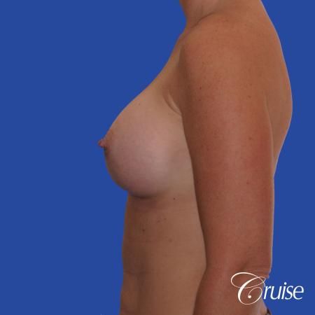 Breast Augmentation - After Image 2
