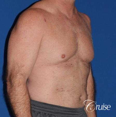 extended pa incision on gynecomastia patient - Before Image 3