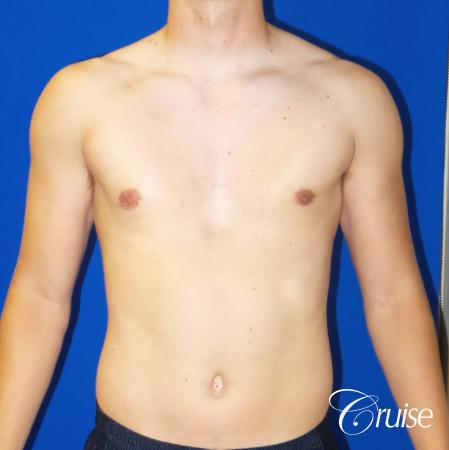 Best moderate gynecomastia on male adult -  After Image 1