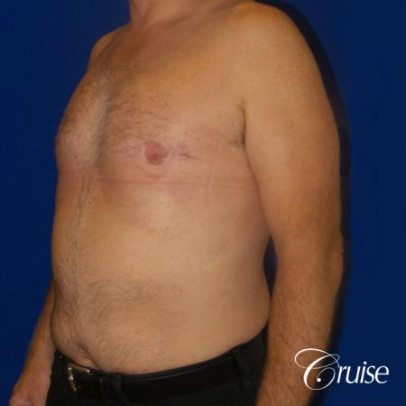 Moderate Gynecomastia -Areola Incision - After Image 2