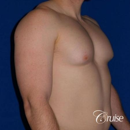 Dr. Cruise gynecomastia surgery photos - Before and After Image 2