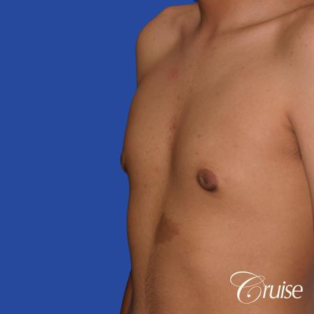 gynecomastia patient gets nipple reduction for best results -  After Image 3
