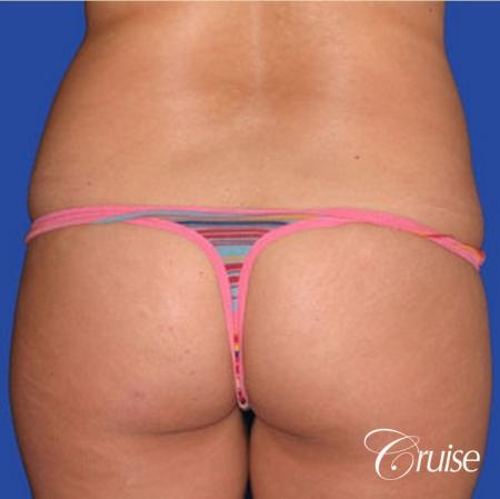 dramatic liposuction plastic surgeon does the best abdomen and flanks - Before Image 1