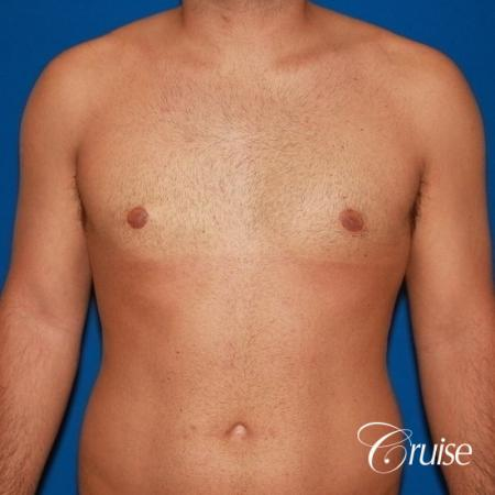 moderate gynecomastia on adult -  After Image 1
