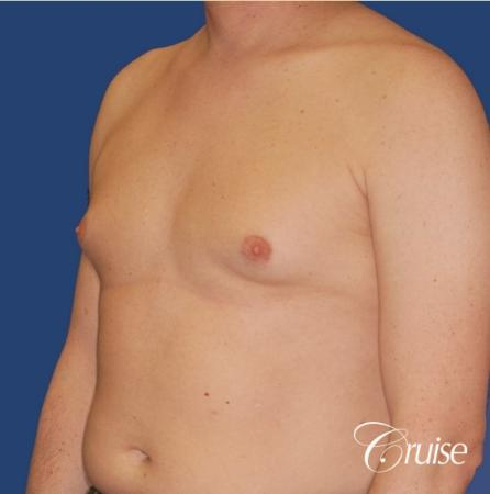 moderate gynecomastia on adult donut lift - Before Image 3