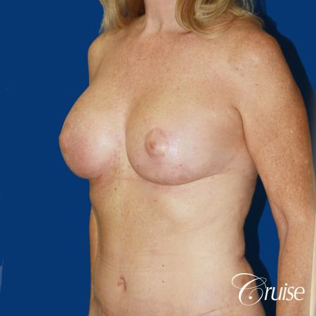 62 yr old woman with breast lift anchor and silicone implants -  After 3